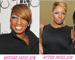 NENE LEAKES NOSE JOB